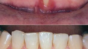 Reversing Gum Recession