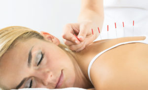 Acupuncture  for Long Term Pain Relief