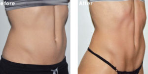 New Radiance offerS The latest Advancement in Body Sculpting –