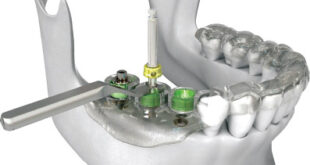 Computer CT Guided Dental Implant Surgery: