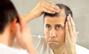 Learn The Bald Truth About Hair Loss
