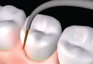 LANAP: A Painless Way to Treat Gum and Bone Loss