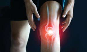 New Treatments For Knee Arthritis Now Available